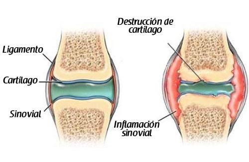 producto para regenerar cartilago